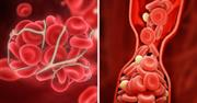 جلوگیری از لخته شدن خون