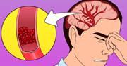 اگراغلب سردرد دارید و کم انرژی هستید این ویتامین ها را مصرف کنید