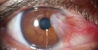 ناخنک چشم چیست؟ علائم و درمان ناخنک چشم