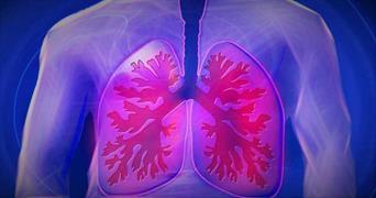 عفونت ریه و علامت آن