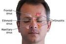 خطرات و مضرات پلیپ بینی
