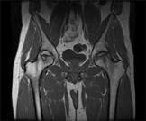 ام آر آی لگن بیمار تغییراتی را در هر دو سر استخوان ران نشان میدهد که در طرف راست شدیدتر است