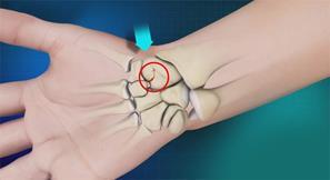 شکستگی استخوان اسکافوئید در مچ دست. علائم،علل، درمان و عوارض