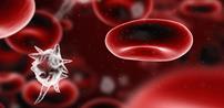 بیماری سپسیس چیست؟ علل ، علایم و درمان سپسیس