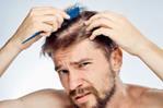 انواع ریزش مو ، علل و روش های درمان آن